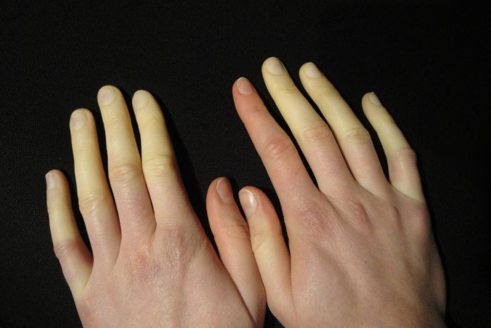 Sindrome-di-raynaud